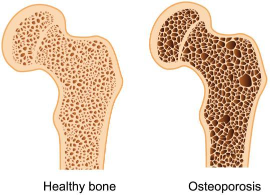 shabdaspa Osteoporosis